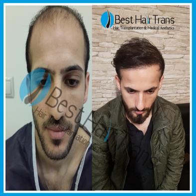 Best Hair Trans